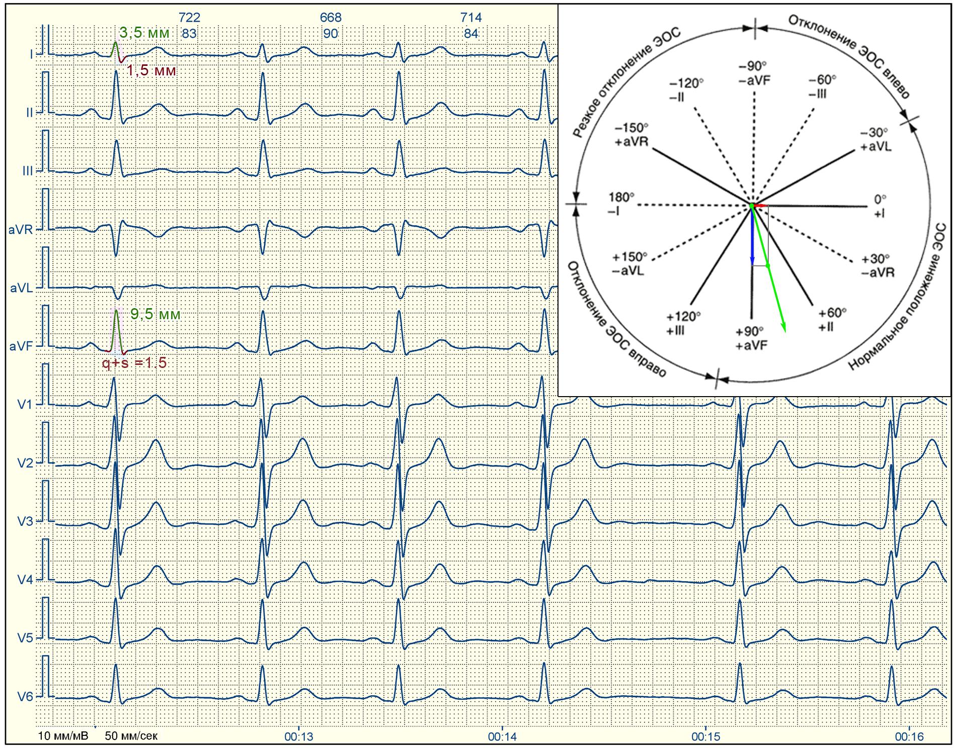 alfa-75-80-vert
